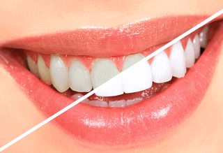http://www.jaijinendradentalhospital.com/wp-content/uploads/2015/11/Teeth-Whitening-320x219.png
